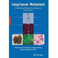 Lung Cancer Metastasis: Novel Biological Mechanisms and Impact on Clinical Practice