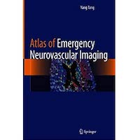 Atlas of Emergency Neurovascular Imaging by Yang Tang PDF Download